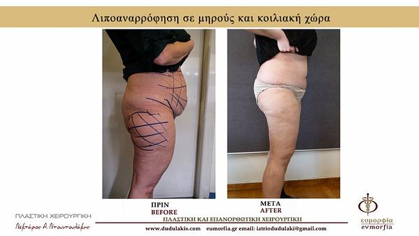 ΛΙΠΟΓΛΥΠΤΙΚΗ ΝΤΟΥΝΤΟΥΛΑΚΗΣ
