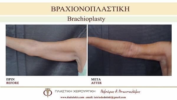 ΒΡΑΧΙΟΝΟΠΛΑΣΤΙΚΗ ΝΤΟΥΝΤΟΥΛΑΚΗΣ