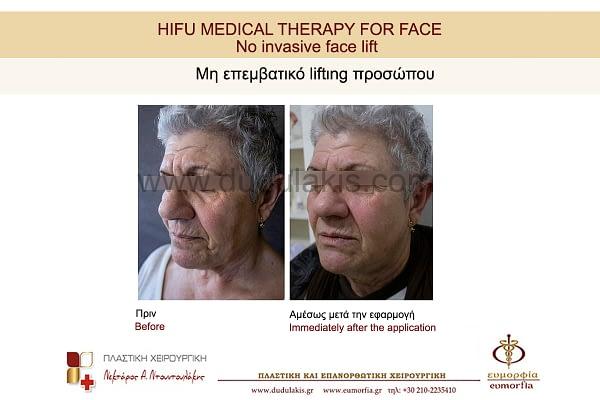 HIFU FOR FACE DUDULAKIS (11)