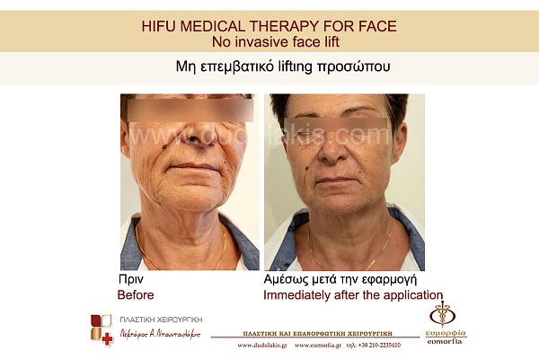 HIFU FOR FACE DUDULAKIS  (2)
