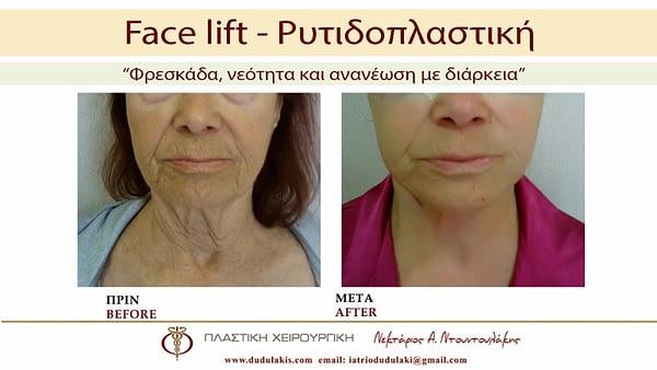 FACE LIFTING ΝΤΟΥΝΤΟΥΛΑΚΗΣ (2)