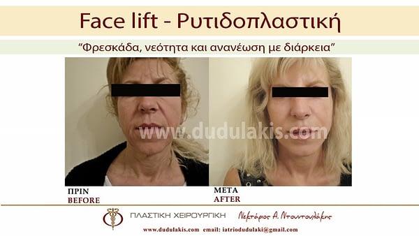 FACE LIFTING ΝΤΟΥΝΤΟΥΛΑΚΗΣ (3)