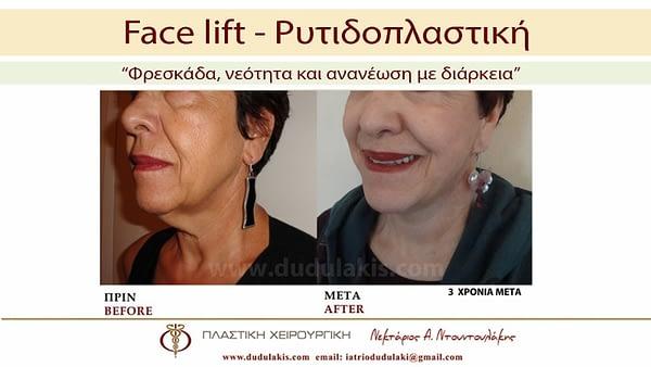 FACE LIFTING ΝΤΟΥΝΤΟΥΛΑΚΗΣ (4)