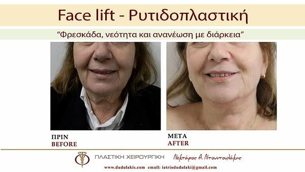 FACE LIFTING ΝΤΟΥΝΤΟΥΛΑΚΗΣ (5)