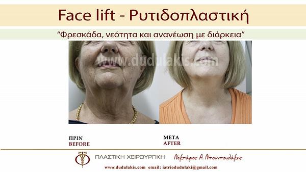 FACE LIFTING ΝΤΟΥΝΤΟΥΛΑΚΗΣ (6)