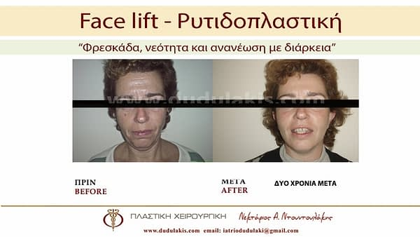 FACE LIFTING ΝΤΟΥΝΤΟΥΛΑΚΗΣ (7)