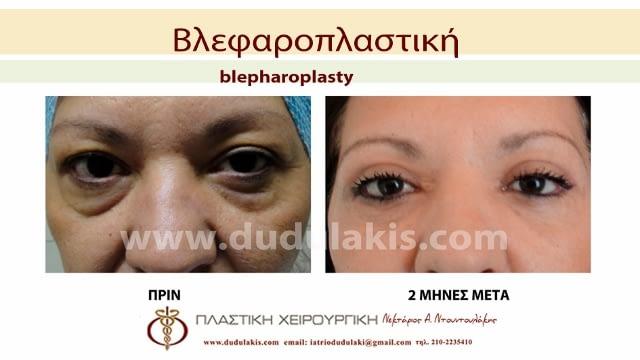 blefaroplastiki2a (640x360)