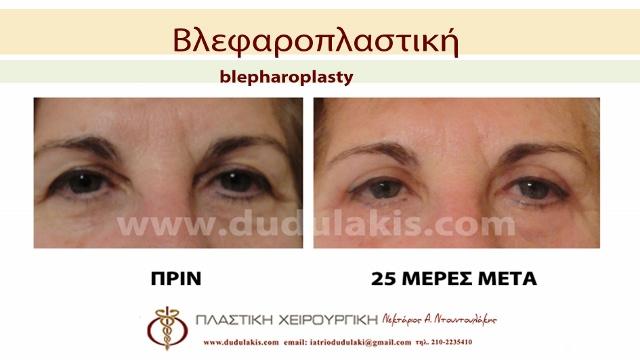 blefaroplastiki3 (640x360)
