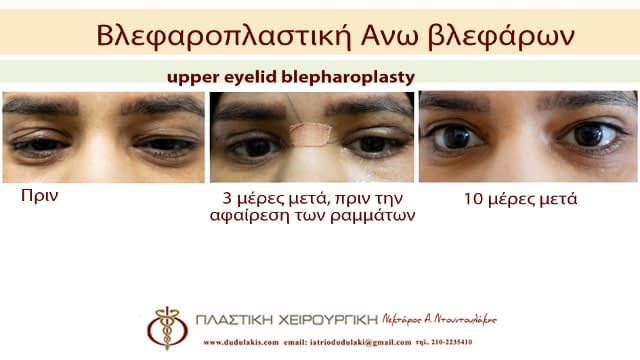 blefaroplastiki3aβββ (640x360)
