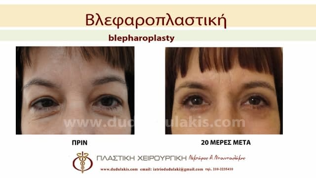blefaroplastiki4β (640x360)