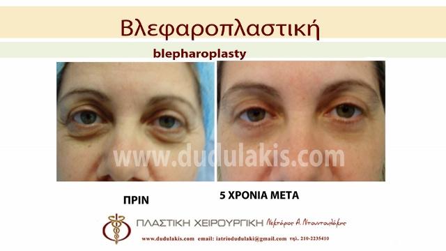 blefaroplastiki5β (640x360)