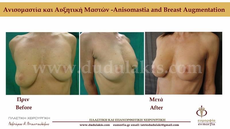 Ντουντουλάκης αυξητική στήθους