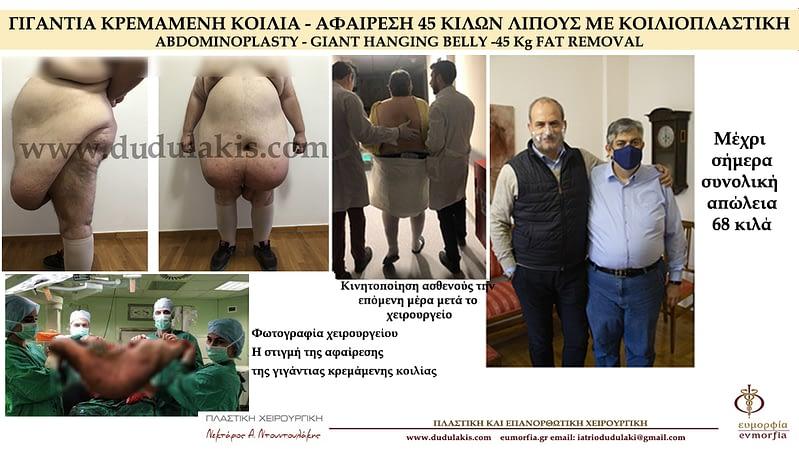 νοσογονο παχυσαρκία -Ντουντουλάκης 1